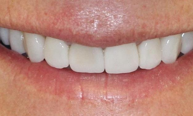 Natural-Looking-Cosmetic-Dentistry-with-DSD-After-Image