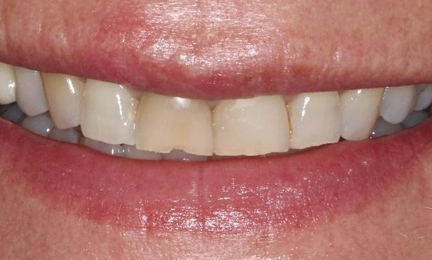 Natural-Looking-Cosmetic-Dentistry-with-DSD-Before-Image