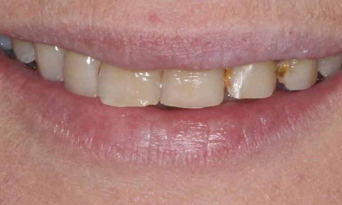 Digital-Smile-Design-Before-Image